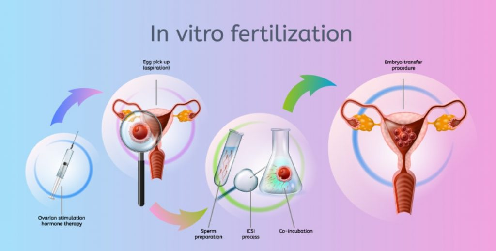 in vitro fertilization ivf