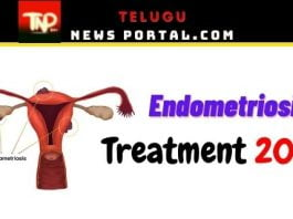 endometriosis treatment options
