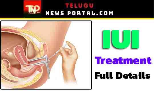 iui-intrauterine insemination