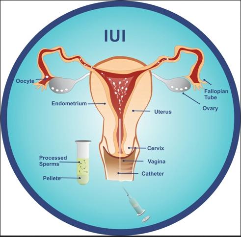 IUI – Intrauterine Insemination