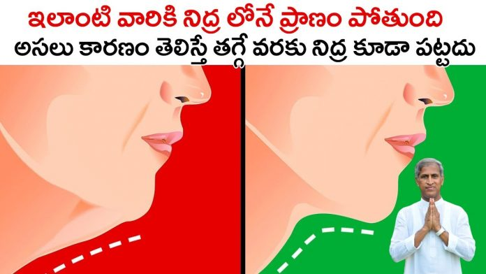 Double chin health issues in telugu